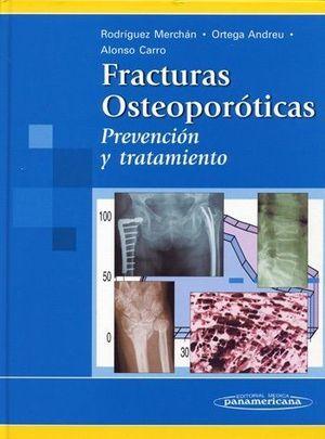 FRACTURAS OSTEOPOROTICAS PREVENCIOIN Y TRATAMIENTO